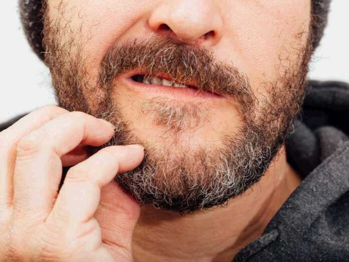 reduce beard itch
